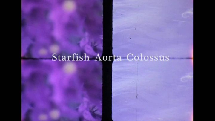 Starfish Aorta Colossus